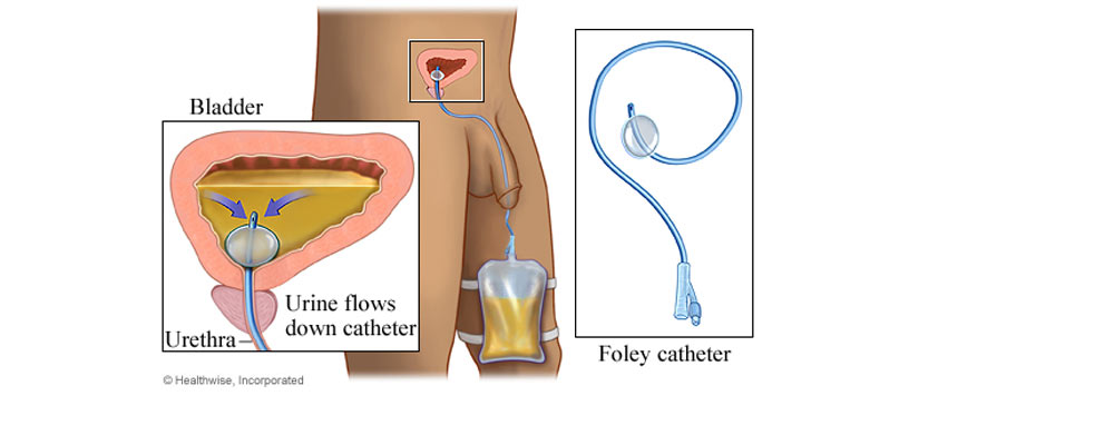 Bladder Foley catheter