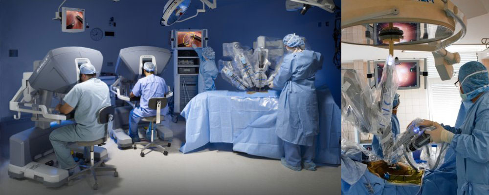 ROBOTIC PROSTATE CANCER SURGERY