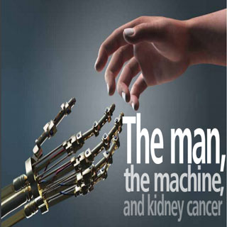 THE MAN, THE MACHINE AND KIDNEY CANCER