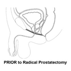 prior to radical prostatectomy