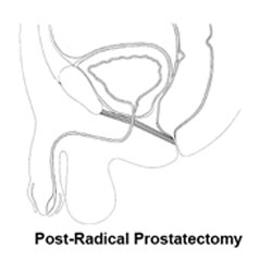 post-radical  prostatectomy